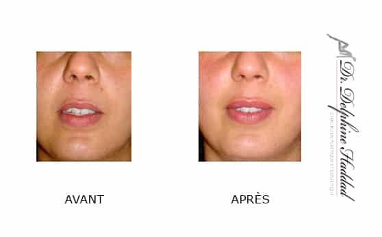 acide hyaluronique visage