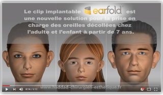 implants earfold