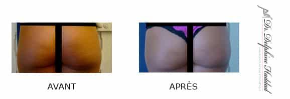 réduction des fesses avant après