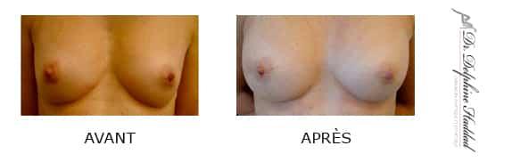 augmentation des seins paris