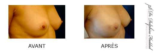 opération des seins paris