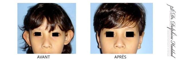oreilles décollées enfant avant après