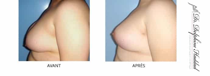 réduction des seins avant après